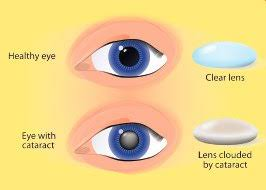 Blindness After Cataract Surgery Improve Your Odds Of Successful Cataract Surgery Life Extension