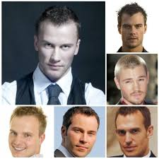 different types of receding hairlines types of receding hairlines men39s hairstyles and haircuts for