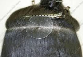 laser hair extensions care after laser hair removal order hair online