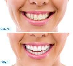 how to use teeth whitening kit with light led home teeth whitening kit skin care clinic belvoir aesthetics