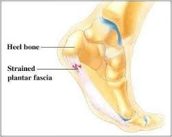 Planters Fasciitis Surgery by Plantar Fasciitis Heel Pain Foot U0026 Ankle Care Dr Michael A