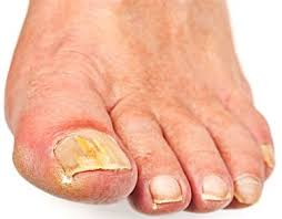 what are the causes of sore skin around the toenails