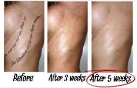 dorian davis u0027s laserless tattoo removal guide review