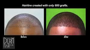prescreened hair transplant physicians successful fue hair transplant for african american patient 1200