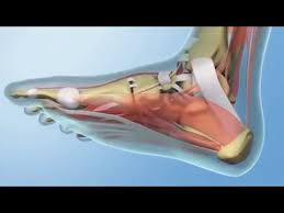 Planters Fasciitis Surgery by When Surgery Is Needed For Plantar Fasciitis Youtube
