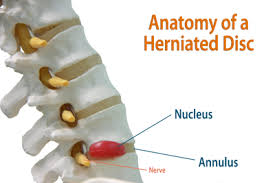 inverted table for herniated disc what is a herniated disc sciatica hell pinterest inversion