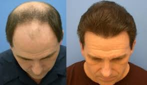 fienes hair transplant block hair loss let s stop losing hair once for all