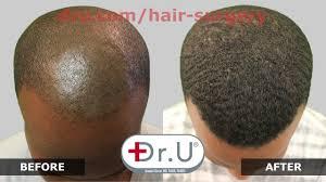 hairline restoration for black men dr upunch curl best tool for fue hair transplant for black men in