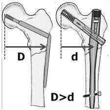 subtrochanteric fracture intramedullary nailing