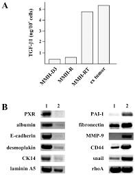 hepatocytes convert to a fibroblastoid phenotype through the
