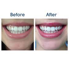 pro light dental whitening system reviews beaming white deluxe home teeth whitening kit