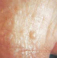 itchy bumps on hands that spread it is athlete s foot or eczema health nails magazine