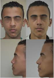 classification and treatment of the saddle nose deformity saddle nose deformity pathological grading and anatomical