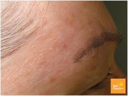 light patches on skin skin cancer on the face skin check wa