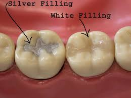light cure composite filling types and costs of tooth fillings in singapore doctor dentist