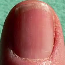 fingernails and redness health boundaries