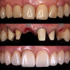 2 years follow up immediat implant placement was performed after