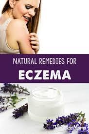 7 natural remedies for eczema wellness mama