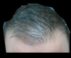 Azelaic Acid Hair Loss 29 And Hair Is Thinning Need Advice Please Hairlosstalk Forums