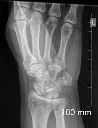 pilonidal cyst mri cases system musculoskeletal radiopaedia org