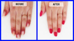 how to get rid of dark skin around the nails in just 7 days youtube