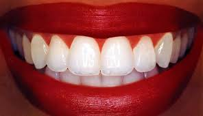 Dentist That Do Teeth Whitening Teeth Whitening With Carbamide Peroxide Intelligent Dental