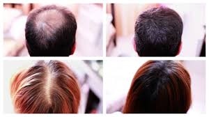 women hair cut to cover bald spot on top of head how to cover up hair loss bald spots thinning hair receding