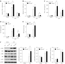 10375 Recql5 Protects Against Lipopolysaccharide D Galactosamine Induced