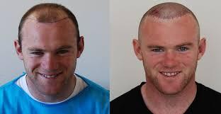 declan donnelly hair transplant the 25 best wayne rooney hair transplant ideas on pinterest