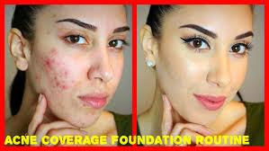 what s a good makeup to cover acne makeup vidalondon