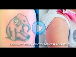 laser tattoo removal before u0026 after final results 8 stage