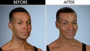 human ken doll before and after the craziest plastic surgery cases that have taken place on