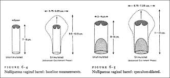 woman s virgina notes on genital dimensions 2004