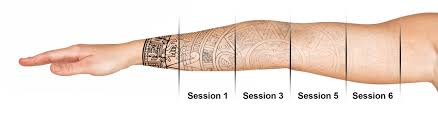 laser tattoo removal near me laser tattoo removal treatment in