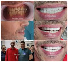 smile gallery before after review smile makeover dental