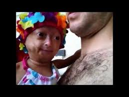 Adalia Rose Meme - adalia rose bio facts family life of social media star