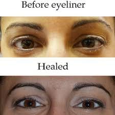 eyeliner tattoo cost eyeliner procedure permanent cosmetics by raya