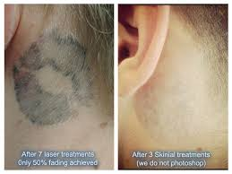how to become a tattoo removal technician uk how to become a