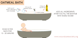 Ants In Bathtub What Are Fire Ants Bites Symptoms And How To Treat Fire Ants Bites
