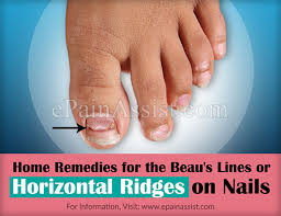 beau u0027s lines or horizontal ridges on nails