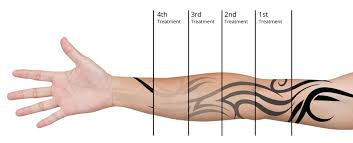 laser tattoo removal near me skin renew tattoo removal changing