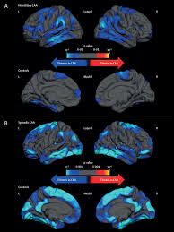 the increasing impact of cerebral amyloid angiopathy essential