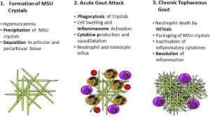 chronic severe gout diets to reduce uric acid cholesterol