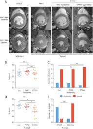 exercise triggers arvc phenotype in mice expressing a disease
