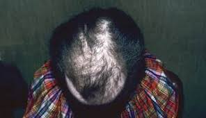 pubic hair disappearing the most common causes of hair loss among women the clinical advisor