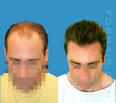 best hairtransplant in the world revolutionary hair transplant technique from dr john cole puts an