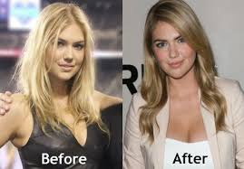 kate upton hair color kate upton before and after plastic surgery celebrity plastic