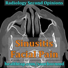 can sinus infection cause dizziness light headed what could cause dizziness and pressure in the forehead things you