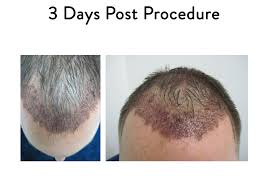 what to expect following hair restoration surgery