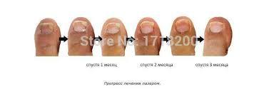 2 packs nail fungus treatments to cure fungus nail onychomycosis